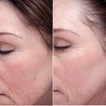 Bedring av brune flekker, hyperpigmentering og tekstur (glatthet i huden)
