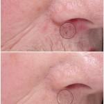 Reduksjon av porer og rødhet