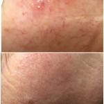 Før og etter 2 behandling