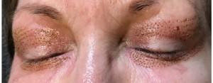 Rett etter behandlingen -  Din Hud